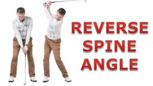 reverse-spine-angle